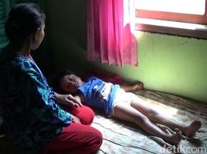 Ini Kata Dinkes Soal Bocah Tanpa Anus di Banyuwangi