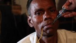 Seorang pria berusia 44 tahun dari India punya kebiasaan tidak biasa. Setiap hari ia gemar makan listrik dari kabel beraliran tinggi yang ada di rumahnya.