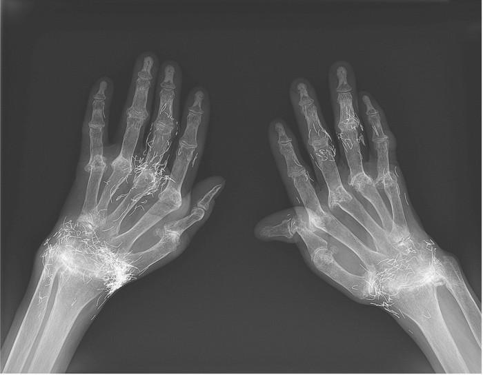 Benda aneh ditemukan dalam rontgen tangan wanita Korea Selatan. Foto: New England Journal of Medicine