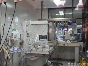 RSHS Bandung Rawat Bayi Kembar Siam Dempet Perut dan Pinggul