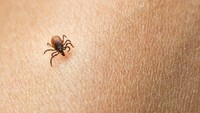 Heboh Virus Tick-Borne di China, Perlukah Indonesia Khawatir?