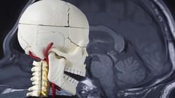 5 Hal yang Perlu Diketahui Tentang Penyakit Otak Brain Atrophy