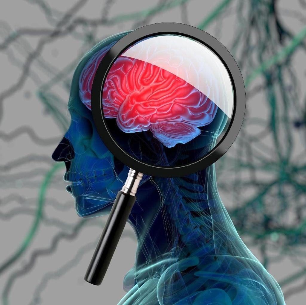 Perempuan Punya 5 Anak atau Lebih, Risiko Kena Alzheimer Meningkat