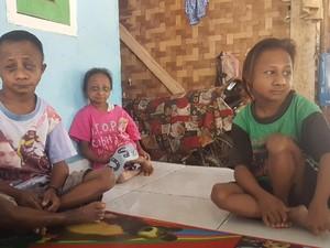 Pasangan di Serang Ini Miliki 3 Anak Berukuran Mini