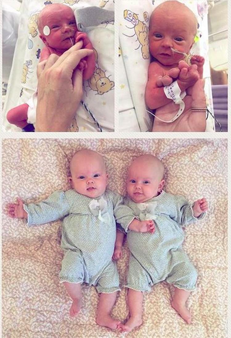 Si kembar Roxy dan Kenzi ini lahir saat usia kandungan 32 minggu. Tapi, mereka bisa bertahan dan tumbuh jadi anak yang nggemesin. (Foto: Instagram/ @madelein_geidenhuys)