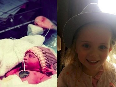 Siapa sangka gadis cilik ini lahir prematur dengan bobot 1,4 kg. (Foto: Instagram/ @dannidanni91)