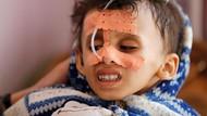 Potret Bocah-bocah Yaman yang Alami Kelaparan