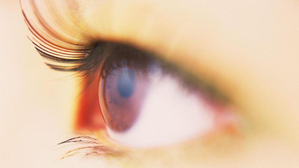 Melanoma Bukan Hanya di Kulit, Bisa Juga Menyerang Mata