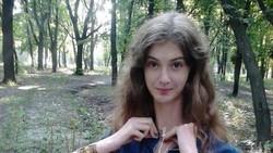 Lyudmila Titchenkova memiliki leher panjang yang bagi beberapa orang mungkin terlihat tidak proporsional. Penyebabnya adalah kondisi genetik langka.