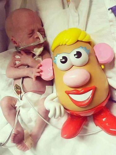 Saat Tokoh Kartun Mr Potato Head Bantu Pantau Perkembangan Bayi Prematur