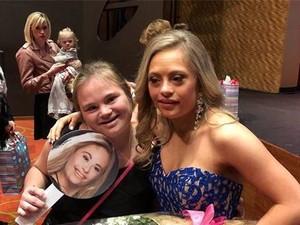 Momen Bahagia Gadis Penyandang Down Syndrome Tampil di Miss USA