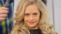 Model Down Syndrome Ini Mendaftarkan Diri Jadi Model Majalah Pria Dewasa