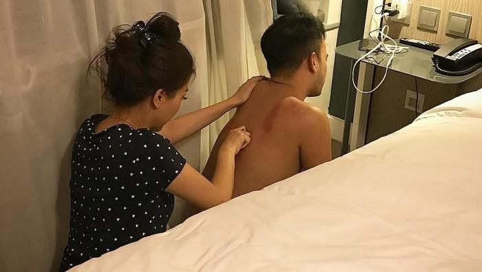 Belum lama Sarwendah mengunggah foto saat ia tengah mengerok sang suami, Ruben Onsu. Foto tersebut rupanya menuai banyak komentar maupun pujian. Foto: instagram/Sarwendah29