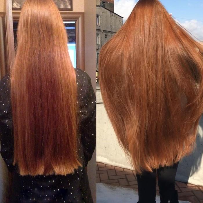 Anastasiya menemui seorang trichologist yang secara bertahap mengembalikan kesuburan rambut. Tidak disangka ternyata rambut Anastasiya bisa tumbuh bahkan lebih subur dari sebelumnya. (Foto: Instagram/sidorovaanastasiya)