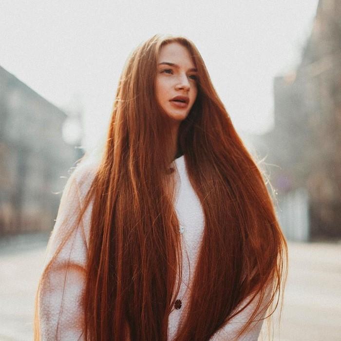 Alopecia membuat rambut Anastasiya rontok hingga nyaris botak. Namun kondisi ini bisa diobati dan Anastasiya membuktikannya. (Foto: Instagram/sidorovaanastasiya)