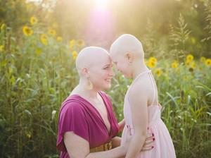Cerita Haru di Balik Foto Ibu dan Anak yang Sama-Sama Botak