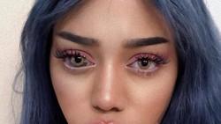 Kalau tanda lahir biasanya muncul di atas kulit, wanita bernama Sonia ini memilikinya di mata. Karena hal itu ia sering dibilang aneh.