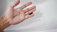Pasien Corona Sembuh Alami Kerontokan Rambut, Efek Samping COVID-19?