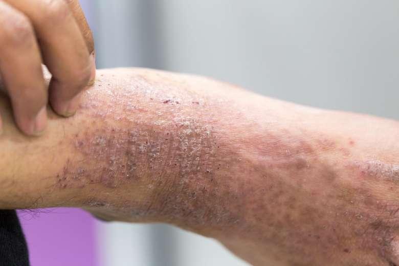 Dermatitis atau eksim adalah peradangan hebat yang menyebabkan pembentukan lepuh atau gelembung kecil (vesikel) pada kulit, sehingga bisa hingga pecah dan mengeluarkan cairan. Nah menurut, dr Michael Triangto, SpKO dari RS Mitra Kemayoran kepada detikHealth beberapa waktu lalu, hal ini bisa saja terjadi ketika memakai sepatu dalam keadaan kaki basah. (Foto: Ilustrasi/Thinkstock)