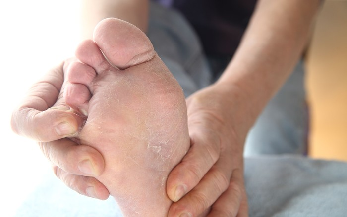 Orang yang gemar memakai sepatu dalam keadaan lembab lebih mudah terserang kutu air atau athletes foot. Kutu air sendiri disebabkan oleh jamur dengan ciri gatal serta adanya kulit kaki atau telapak kaki yang retak atau mengelupas. (Foto: Ilustrasi/Thinkstock)