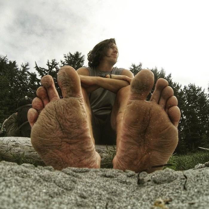 Trench foot adalah kondisi medis serius yang disebabkan oleh kondisi kaki yang dibiarkan lembab untuk waktu yang lama. Penyakit ini dicirikan dengan adanya lecet, kulit bercak kemerahan, serta adanya jaringan kulit yang mati dan mengelupas, demikian dikutip dari Health Line. (Foto: Instagram @chadopia)