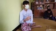 Menengok Andhika, Penderita Kanker Tulang yang Harus Diamputasi