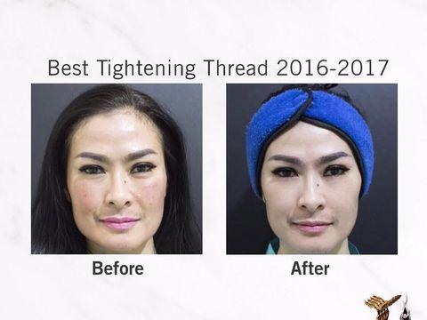 Foto Before After Iis Dahlia Lakukan Botox Hingga Tanam Benang