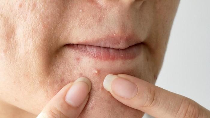 Letak jerawat di area tertentu bisa menunjukkan terjadi masalah di tubuhmu. (Foto: ilustrasi/thinkstock)