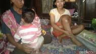 Penderita Tumor Lutut di Ponorogo Ini Butuh Pertolongan
