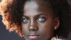 Siapa yang tidak ingin punya mata biru indah menyala. Beberapa orang ini memilikinya karena kondisi genetik langka bernama sindrom waardenburg.