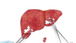 Fakta-fakta Seputar Hepatitis