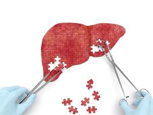 5 Tanda Adanya Masalah pada Organ Hati Manusia
