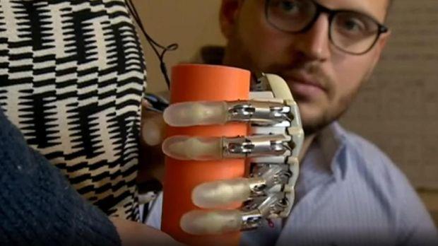 Tangan bionik buatan