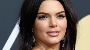 Kendall Jenner Juga Manusia, Wajah Banyak Jerawat Saat Tampil di Red Carpet