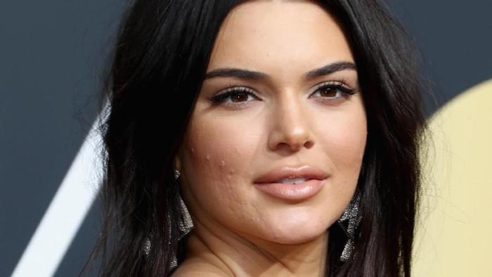 Kendall Jenner dengan wajah berjerawat. Foto: Frederick M. Brown/Getty Images
