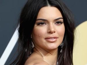 Curhat Kendall Jenner Pernah Jerawatan Parah, Sampai Bikin Dirinya Minder
