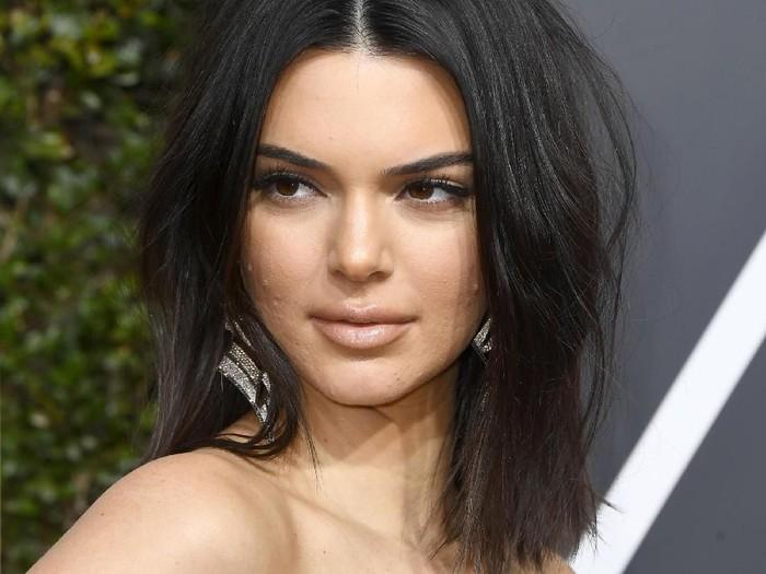 Kendall Jenner mencuri perhatian dengan jerawatnya saat menghadiri Golden Globe Awards. Foto: Frazer Harrison/Getty Images