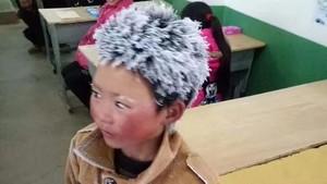 Kisah Mengharukan di Balik Bocah SD Berambut Es