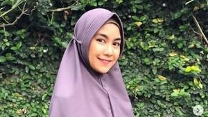 Anisa Rahma Tak Menyesal Dulu Sering Pakai Rok Mini