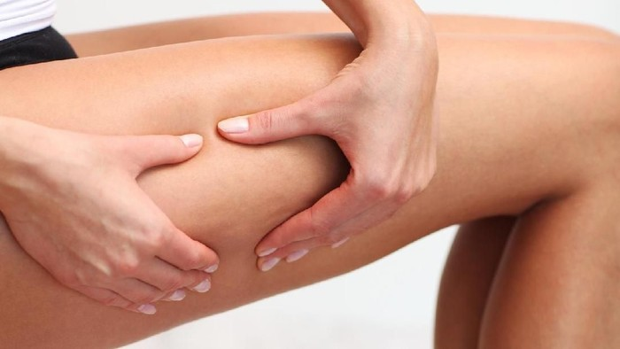 Ceelulite on legs of young woman.