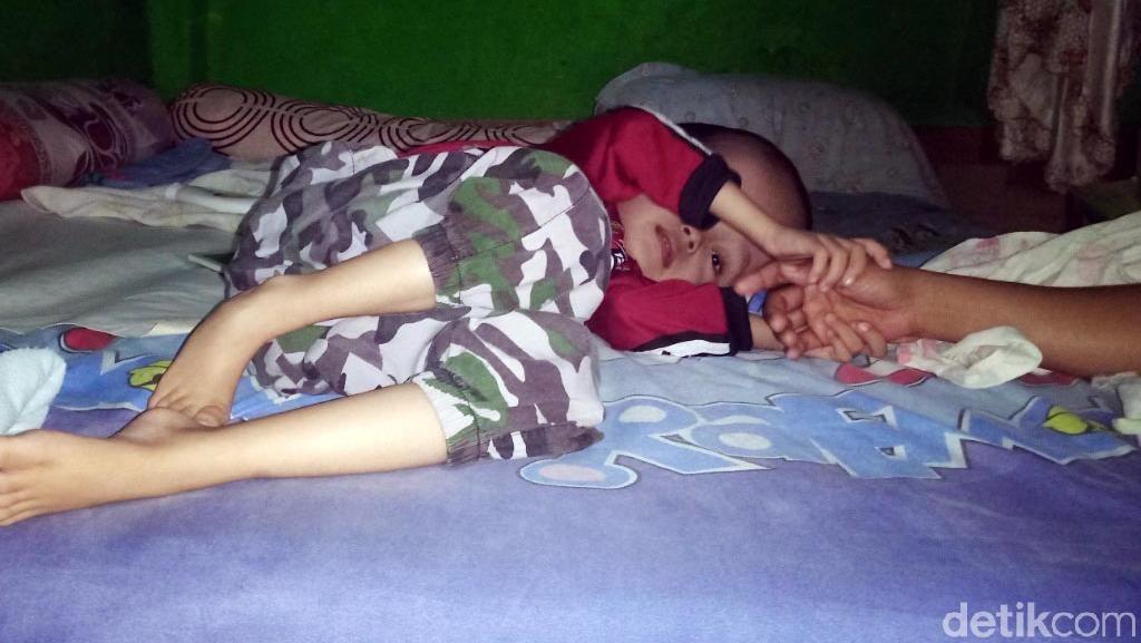Derita Rahman, Bocah Penderita Hidrosefalus