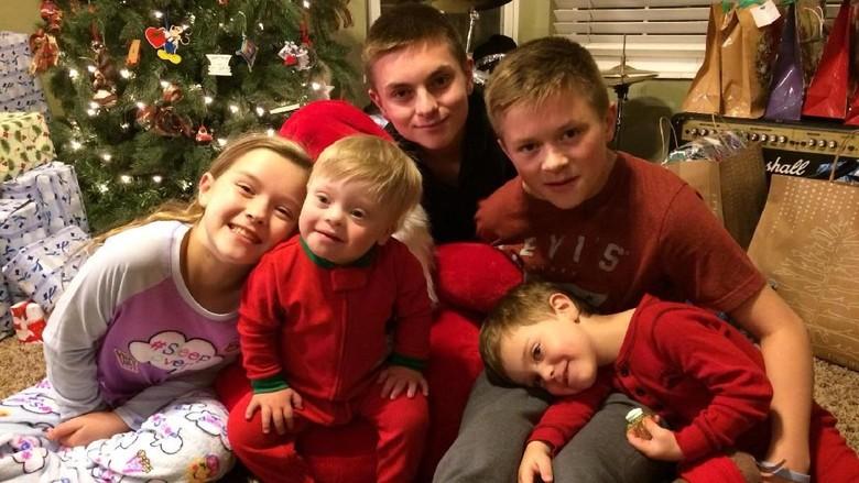 Kakak menghibur adiknya yang down syndrome (Foto: Facebook/ Amanda Bowman Gray)