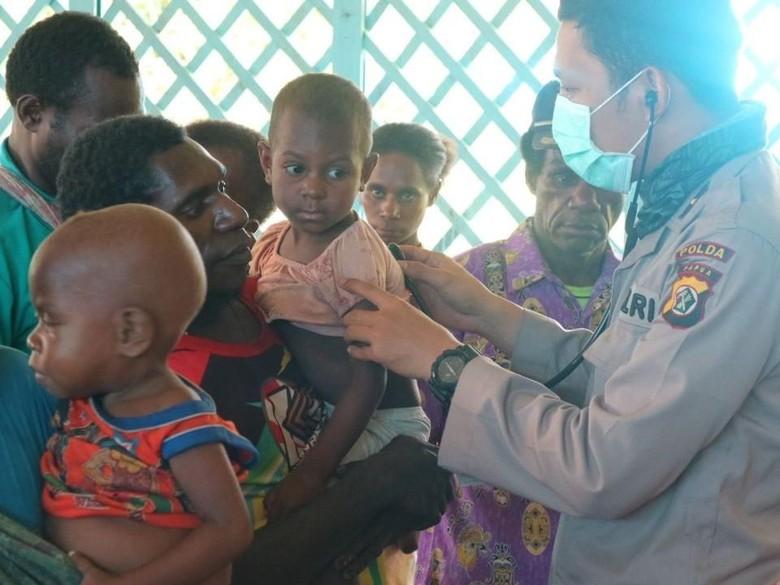 427 Warga Asmat Didiagnosis Campak, Polri-Polda Papua Beri Pengobatan
