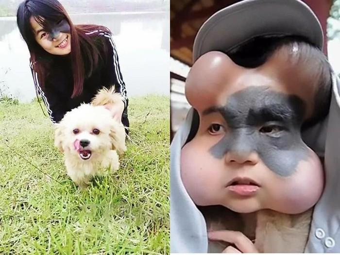 Terdapat empat implan balon di wajah Xiao Yan. (Foto: Facebook/Chidozieblog)