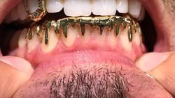 Perhiasan emas berupa cincin atau kalung sepertinya biasa. Tapi bagaimana kalau perhiasan tersebut berupa gigi emas? Langsung saja yuk lihat fotonya di sini.