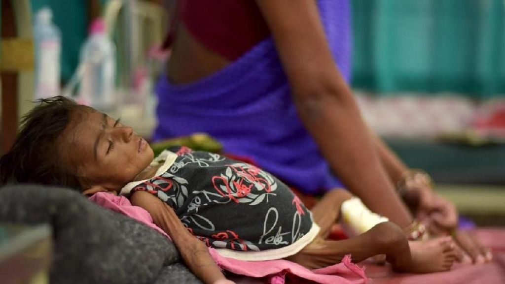 Foto Mirisnya Anak-anak Gizi Buruk di Berbagai Belahan Dunia