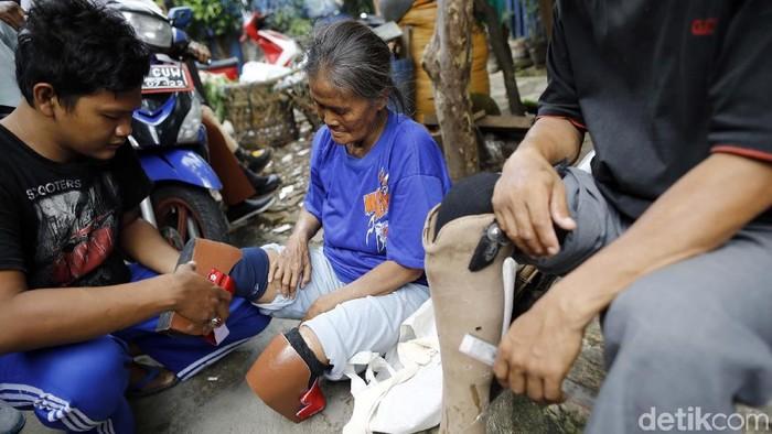 Mantan pasien kusta yang kehilangan kaki. Foto: Rachman Haryanto
