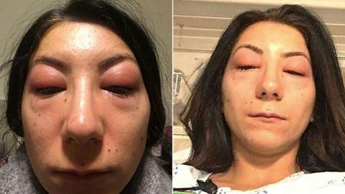 Ekstensi bulu mata dilakukan wanita untuk mempercantik penampilan. Namun bagi Isabelle Kun, ekstensi bulu mata hampir merenggut nyawanya. Foto: Facebook