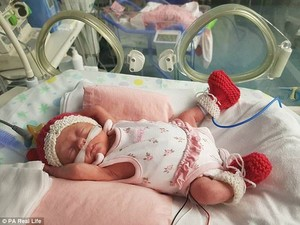 Kisah Bayi yang Lahir Saat Babymoon