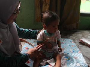 Jumlah Penderita Gizi Buruk Tertinggi di Jawa Tengah Ada di Brebes